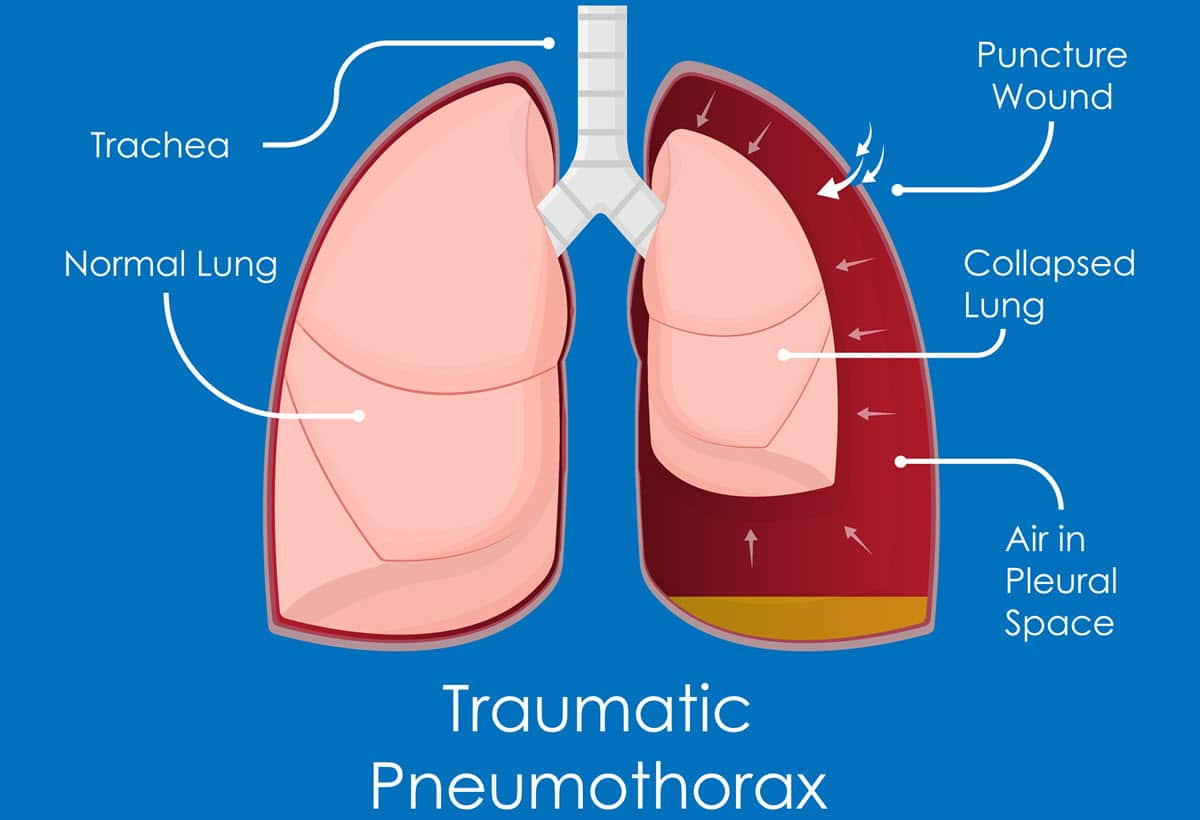 Acute Respiratory Distress Syndrome (ARDS) and Blunt Force Trauma